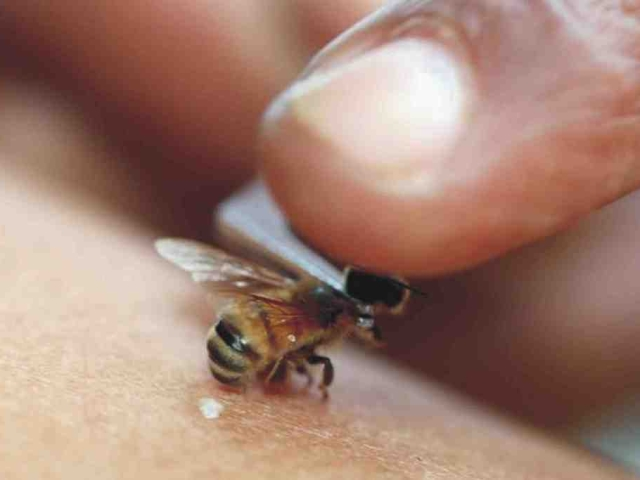 Пчела жалит человека