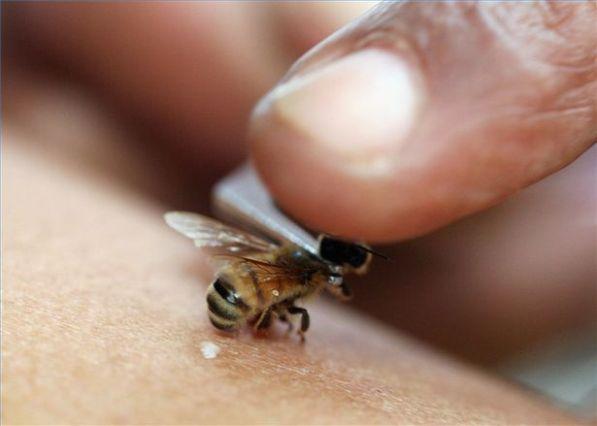Что делать и как избежать укусов пчел, ос и шершней: первая помощь и интересные факты с видео